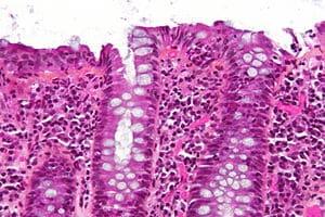 Colitis linfocítica